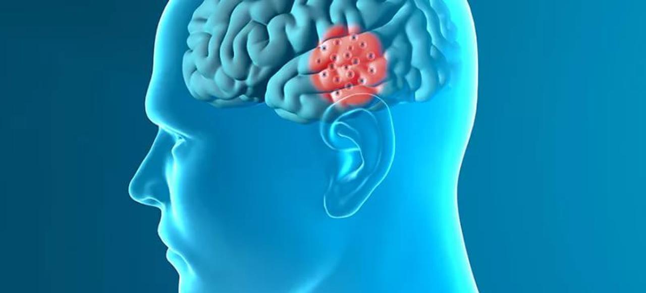 Специалисты Клиники Неврологии и Эпилептологии «ТОНУС ЛАЙФ» приняли участие в IV Национальном конгрессе по болезни Паркинсона и расстройствам движения.