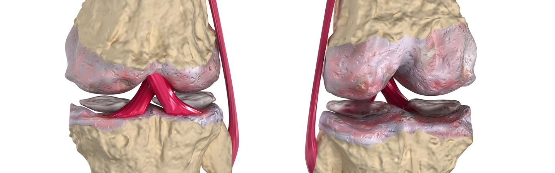 Диагностика болезни суставов в нижнем новгороде лекарство для блокады локтевого сустава