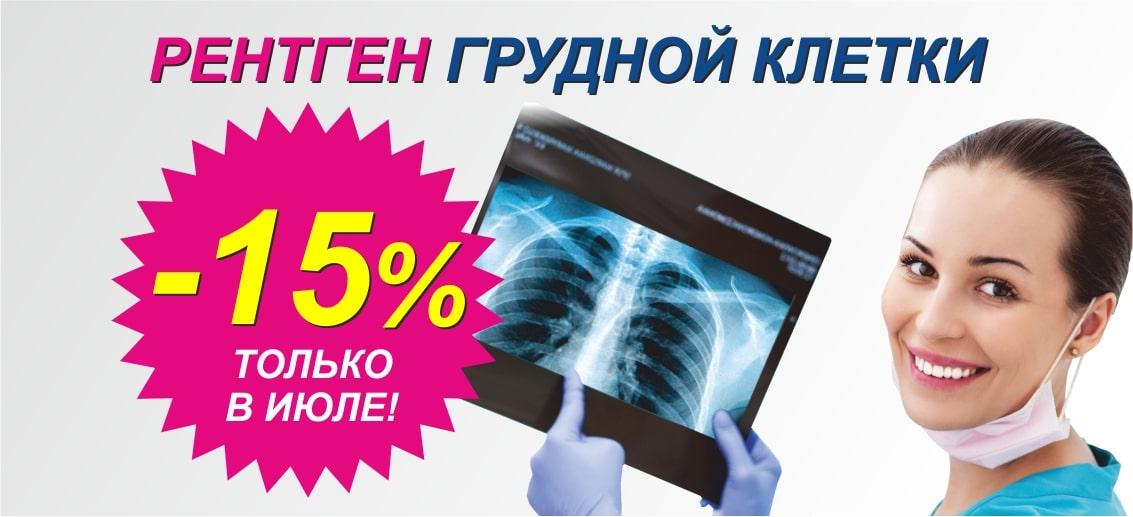 Только в июле действует скидка 15% на рентген грудной клетки (флюорографию)!