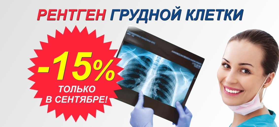 До конца сентября действует скидка 15% на рентген грудной клетки (флюорографию)!