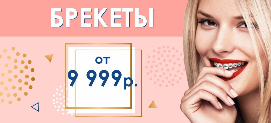Брекет-система с установкой от 9 999 рублей до конца апреля! Подари себе красивые и ровные зубы!