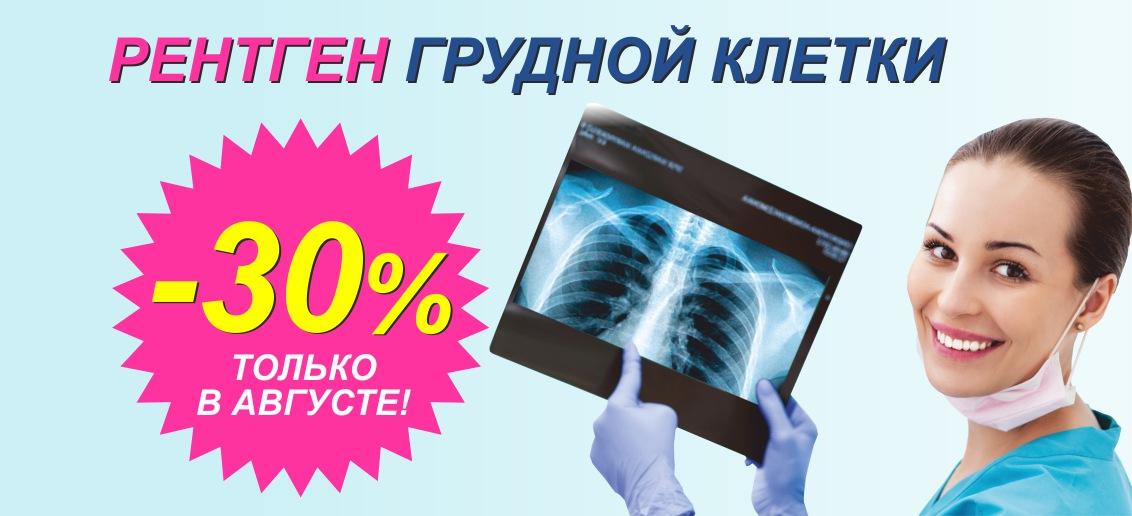Скидка 30% на рентген грудной клетки (флюорографию) до конца августа!