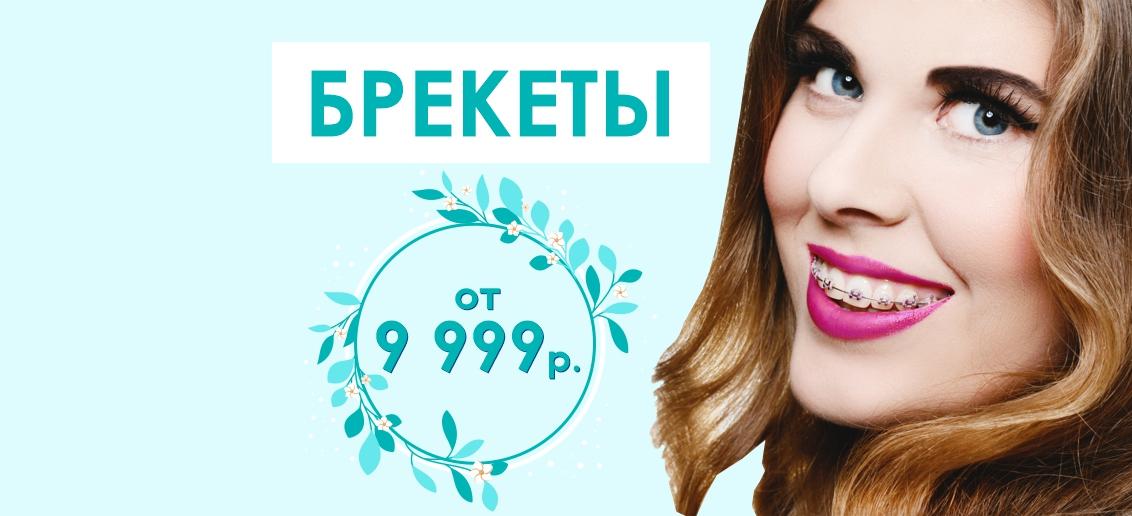 Брекет-система с установкой - от 9 999 рублей до конца июня! Подари себе красивые и ровные зубы!