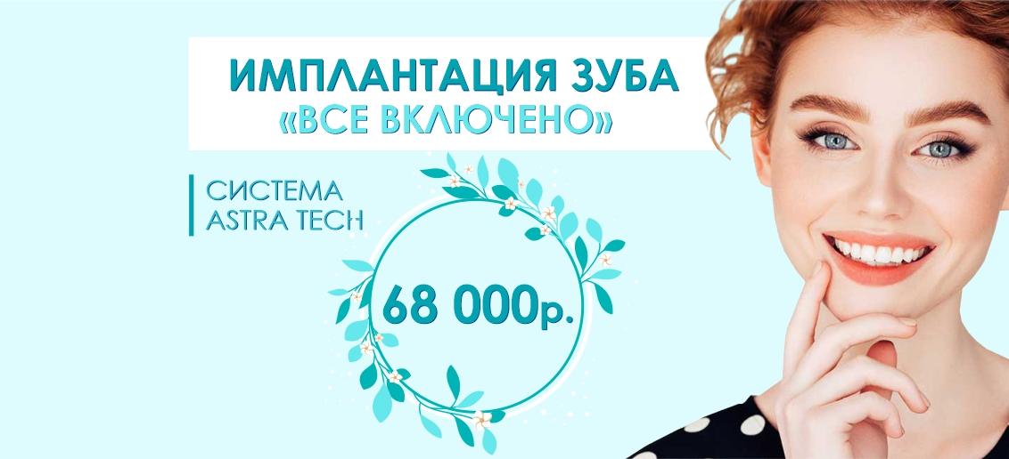 Имплантация Astra Tech «Все включено» - всего 68 000 рублей до конца июня!